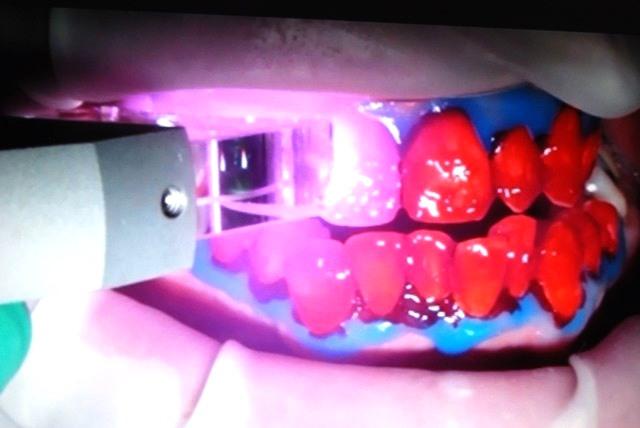 applicazione del gel con perossido (rosso)
